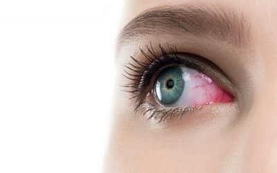 Occhi rossi e lenti a contatto: prevenire questo disagio con le misure appropriate