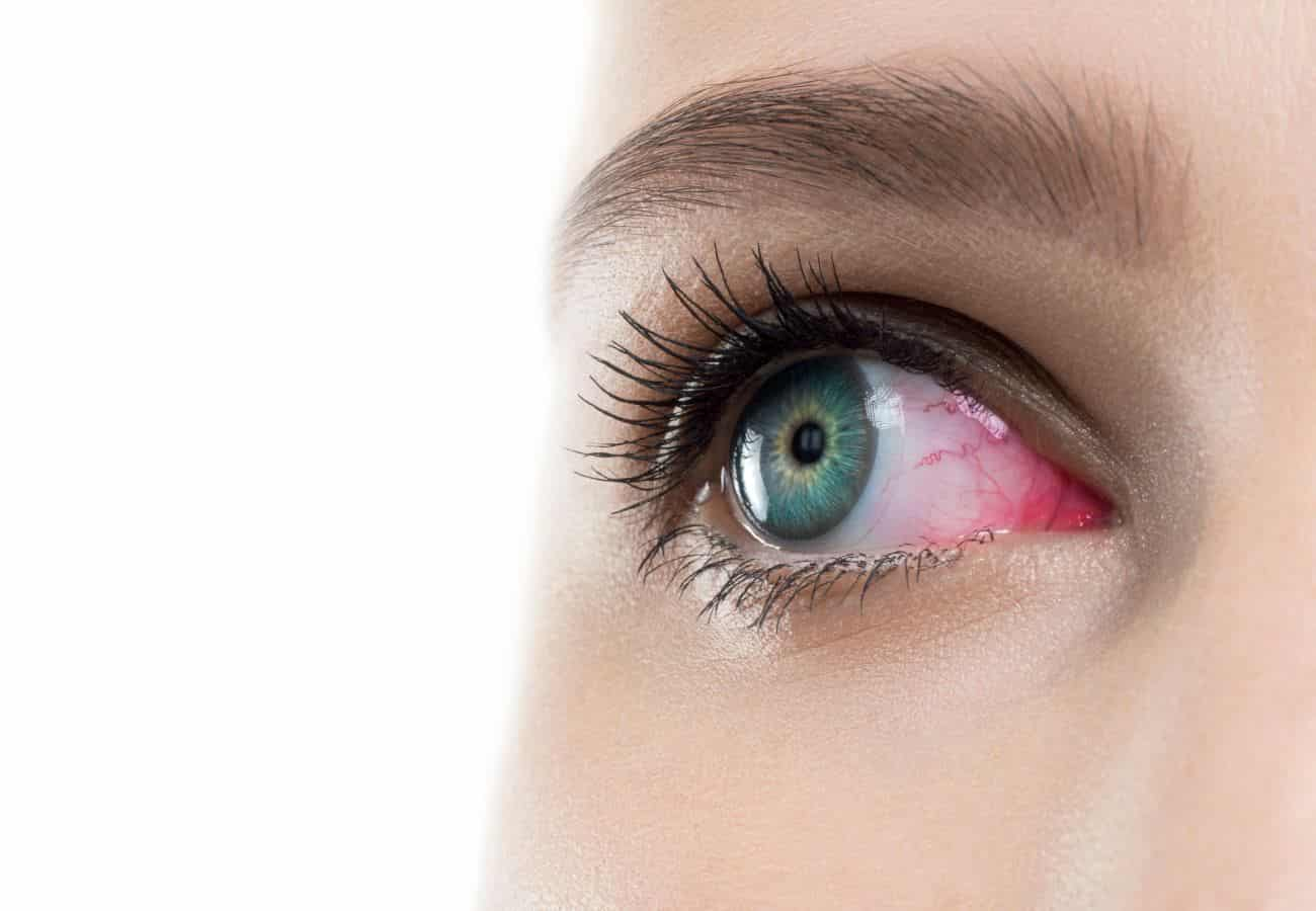 ojos rojos lentillas