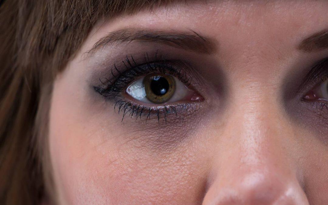 Ojos vidriosos: Qué son, causas y prevención