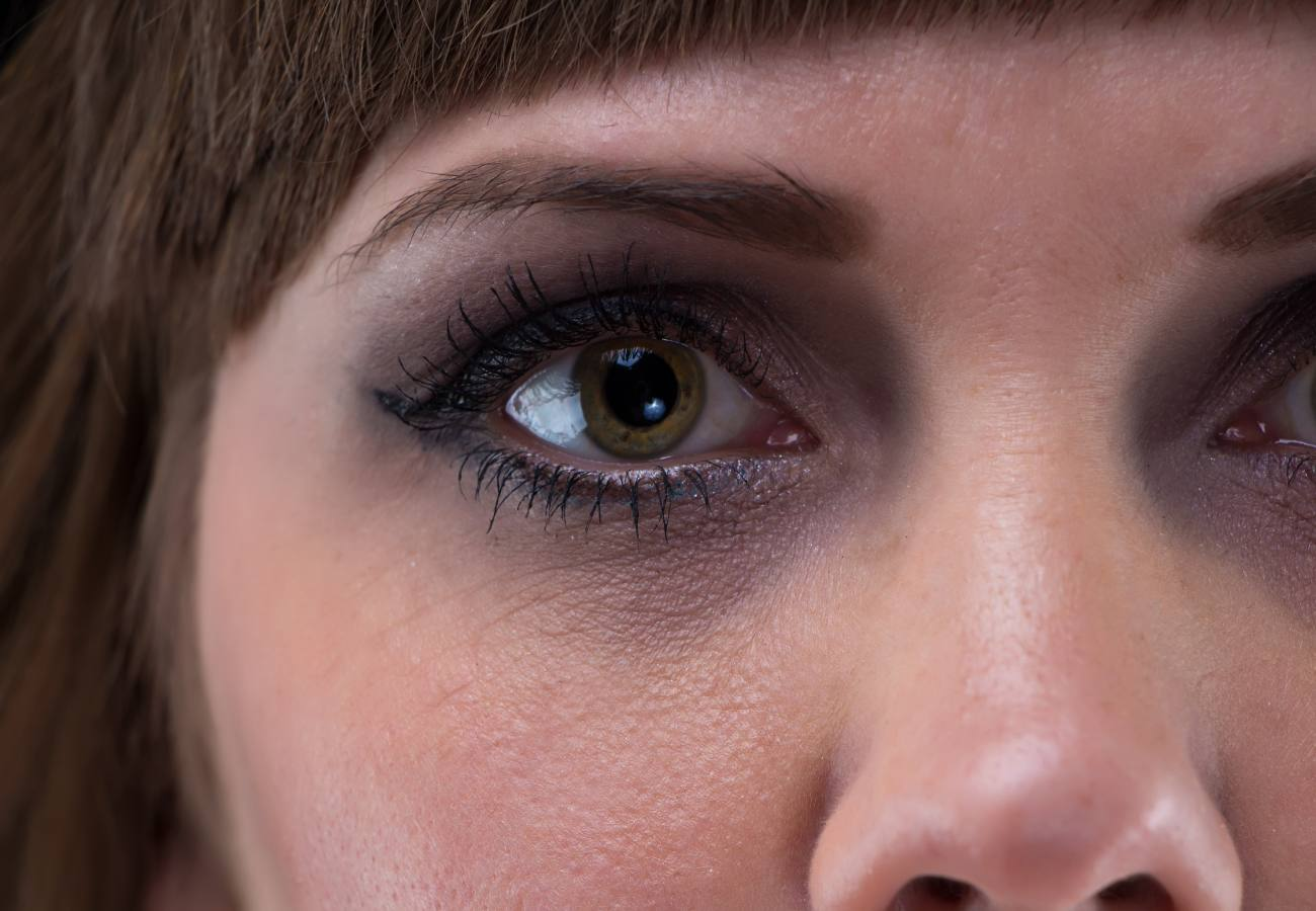 ojos vidriosos