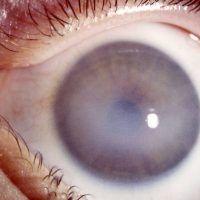 Opacidad corneal