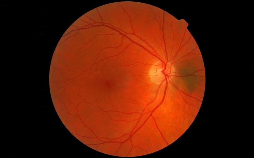 Operación de retina