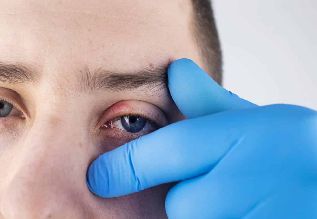tratamiento celulitis postseptal