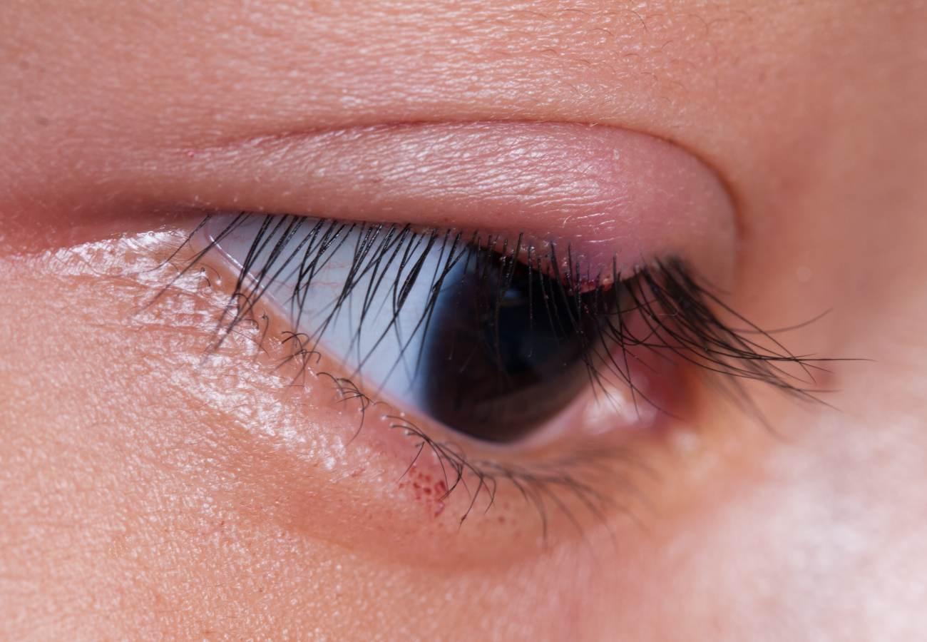 orzuelo sintomas