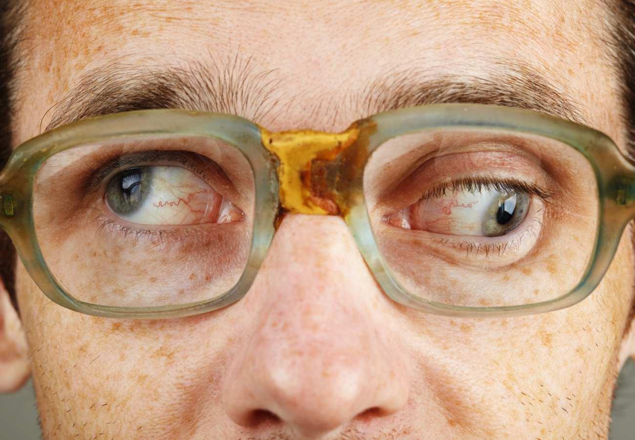 paresias oculomotoras