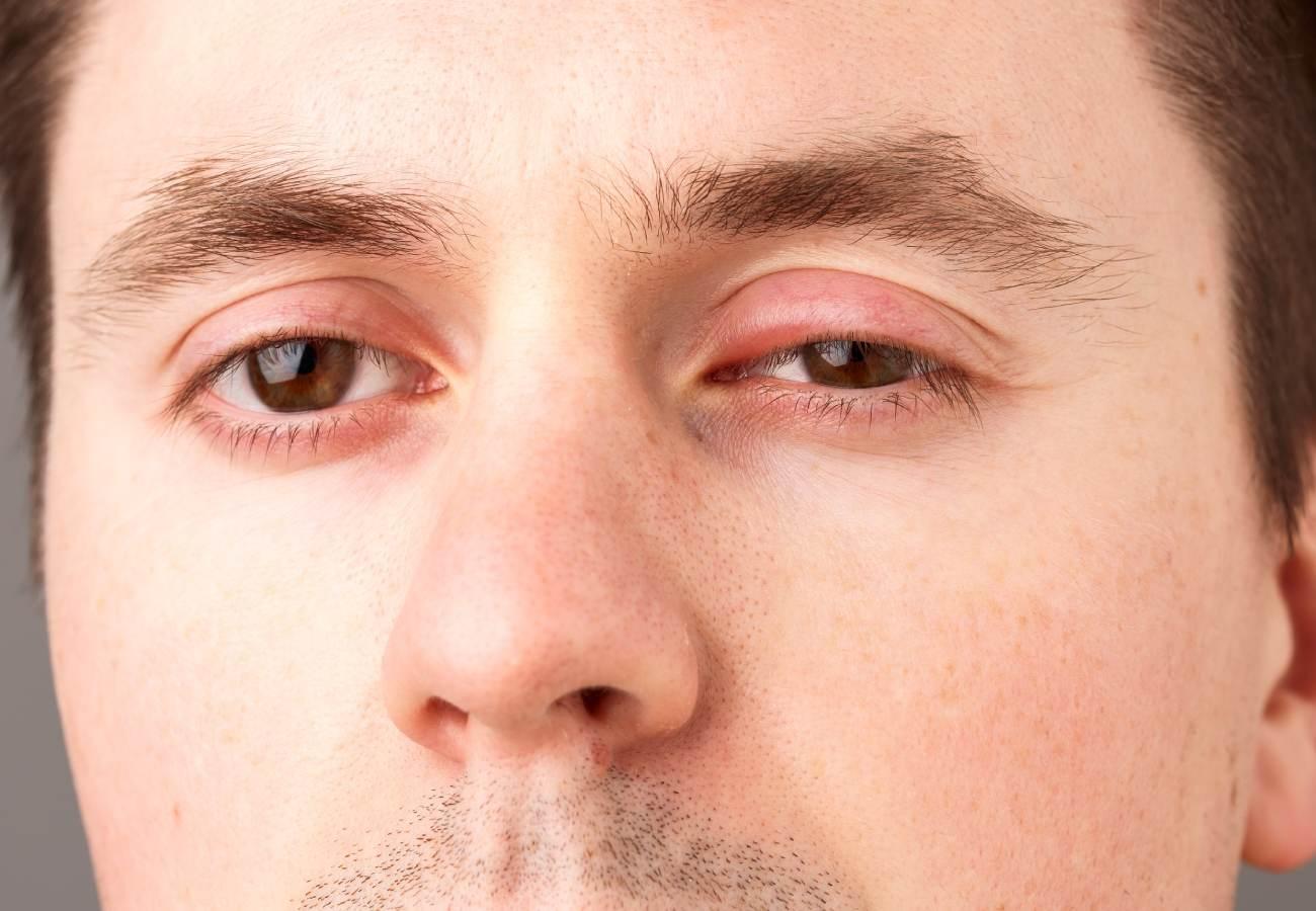 parpado superior inflamado