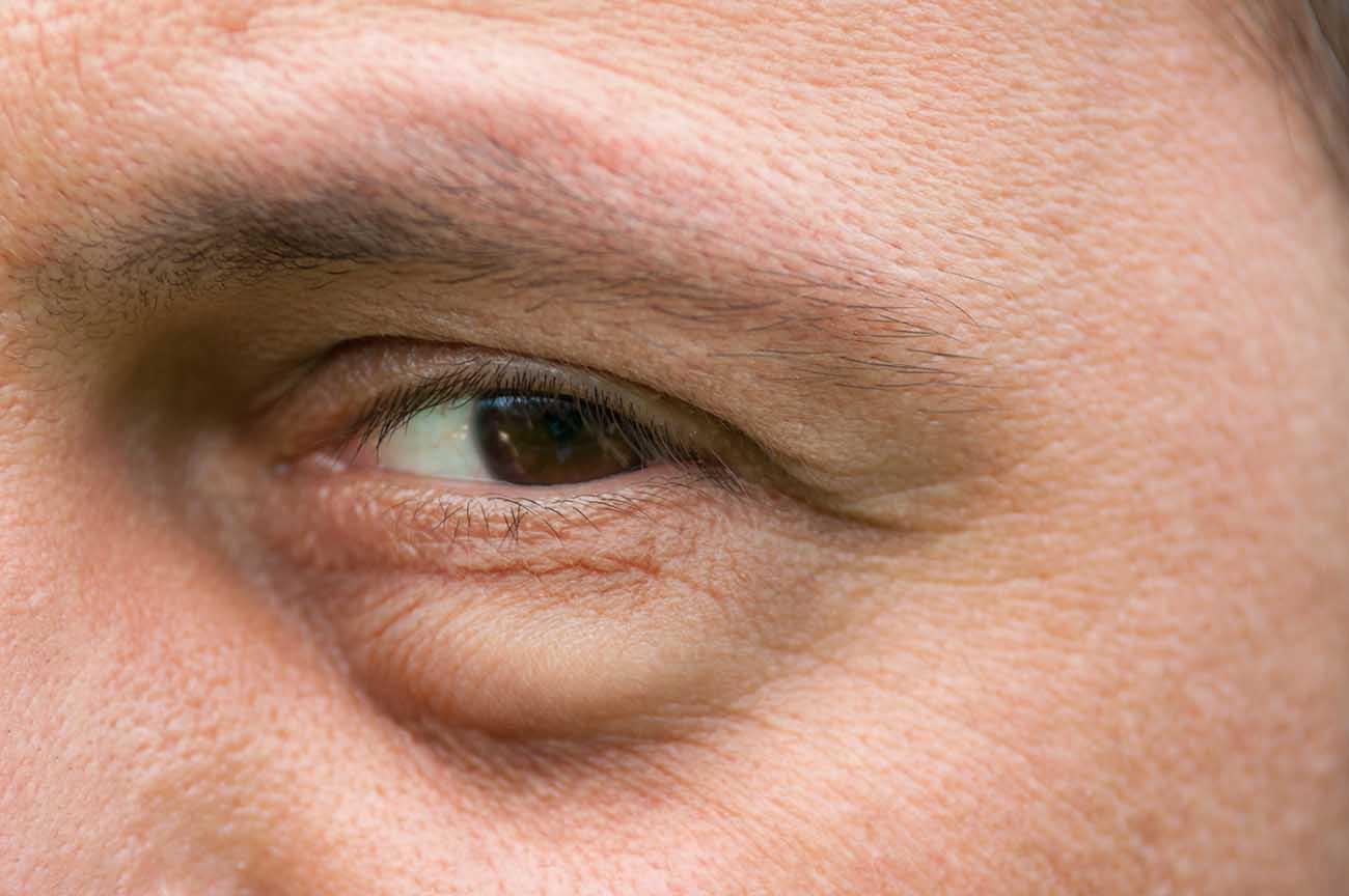 Párpado inferior hinchado: causas y tratamientos