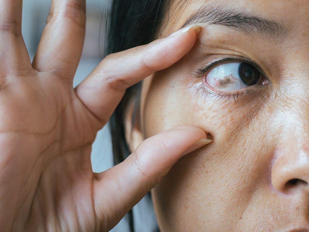 personas con manchas en el iris