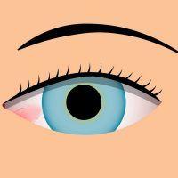 Qué es la pingueculitis, síntomas y tratamiento