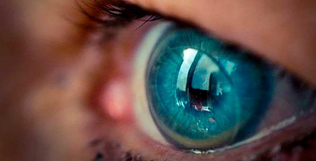 preguntas frecuentes sobre lentillas