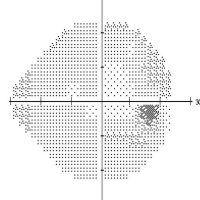 Punto ciego del ojo: qué es, para qué sirve y test para hacerlo tú mismo