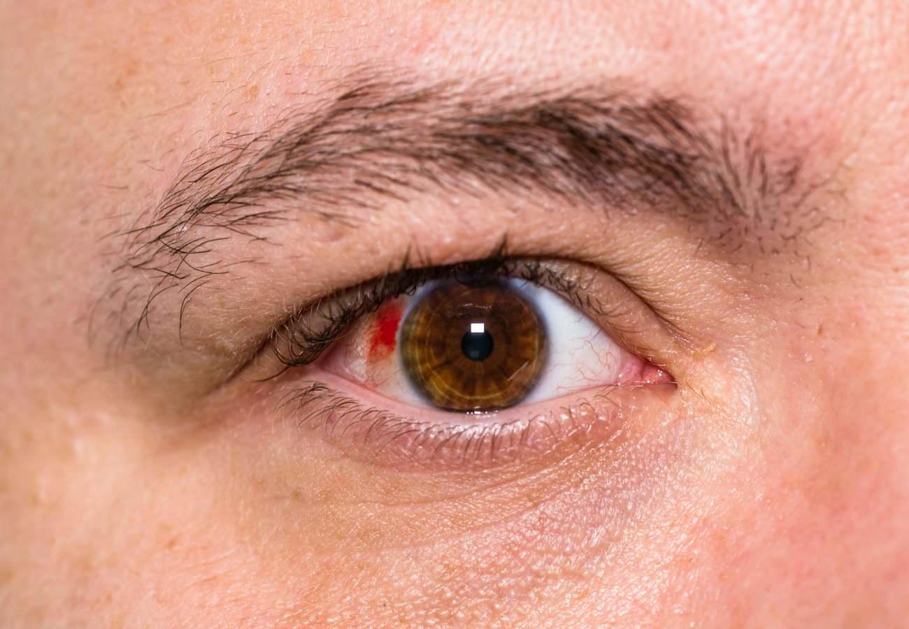 punto rojo en el ojo