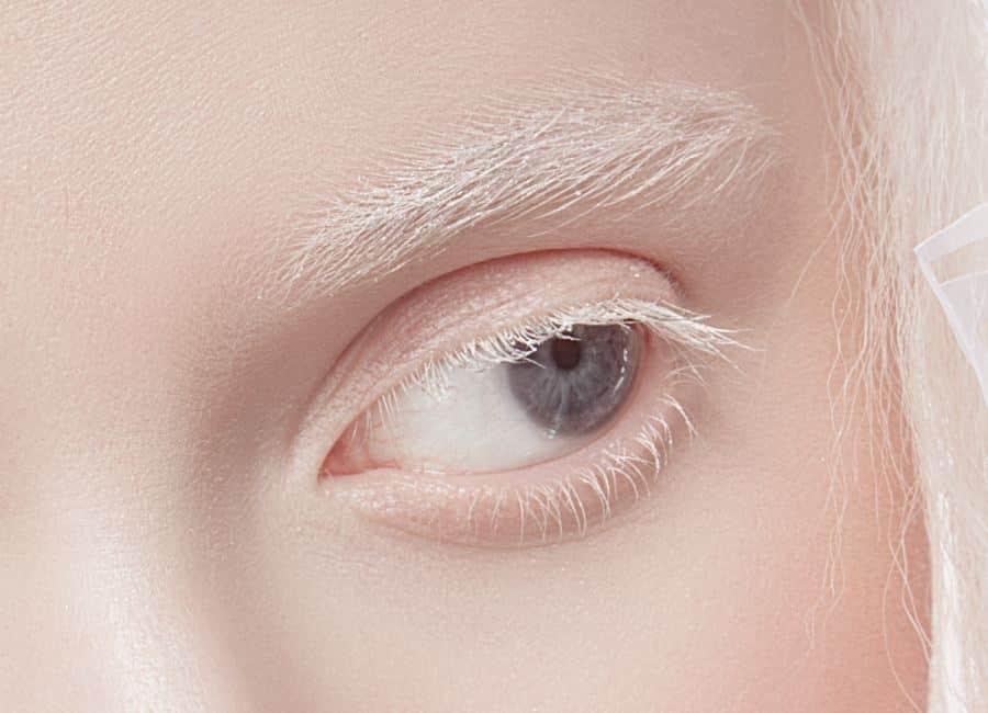 que é albinismo ocular