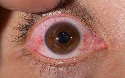 Qué es la conjuntivitis folicular, síntomas, causas y tratamiento