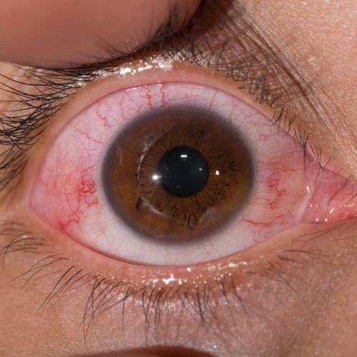 Conjuntivitis folicular