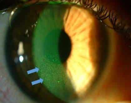 queratopatia ojo seco