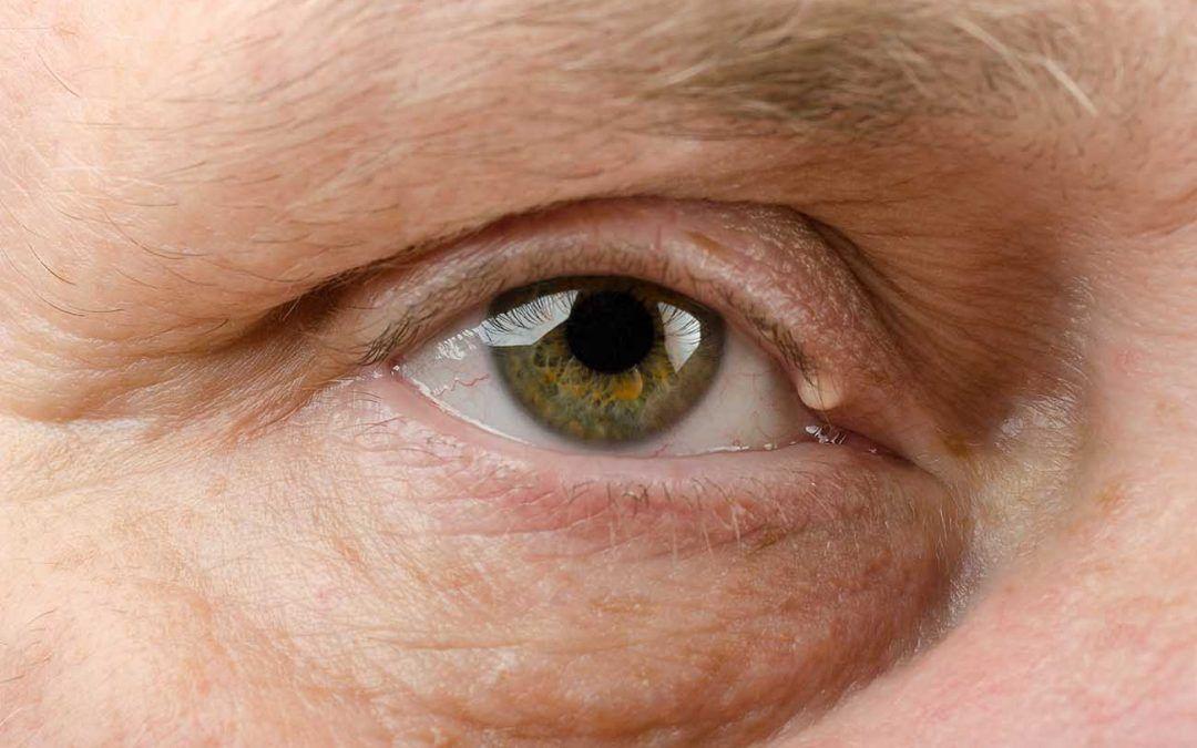 Cisto de gordura no olho: como removê-lo permanentemente?