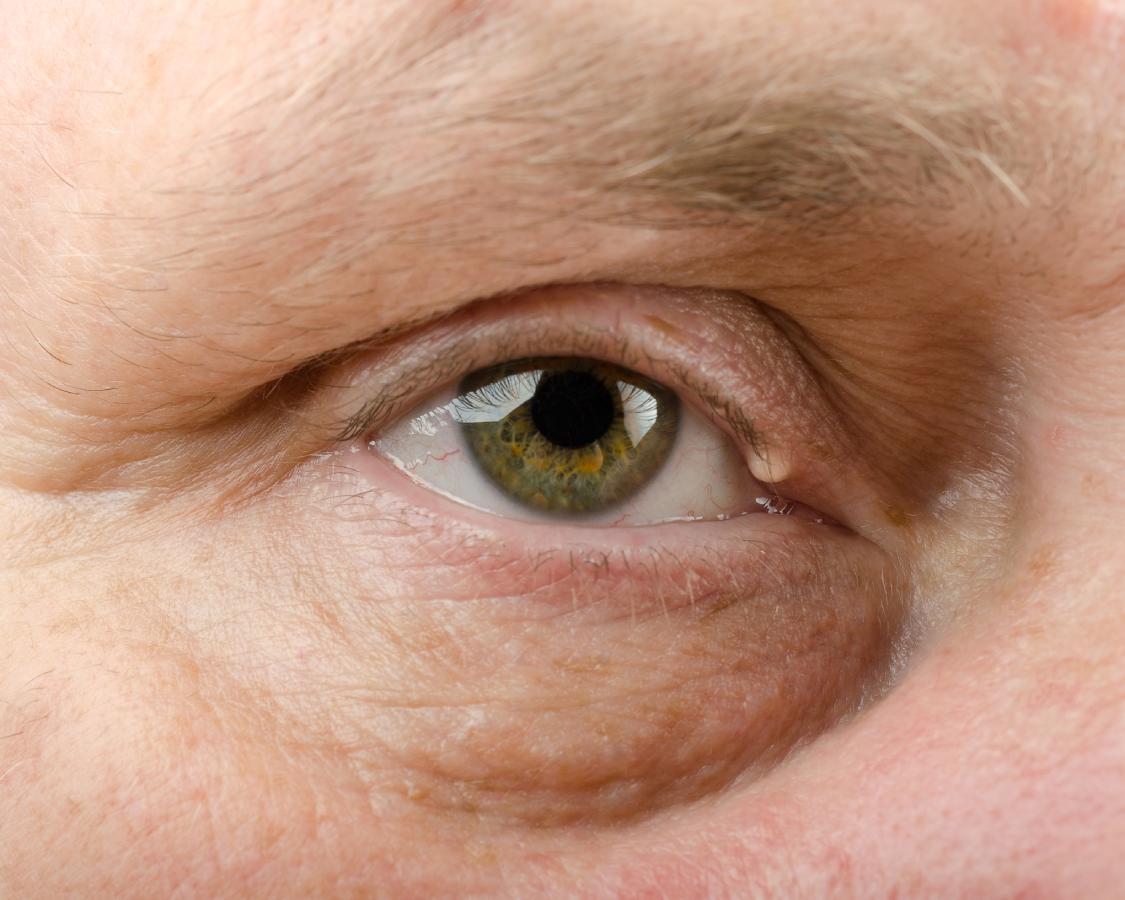 Quiste de grasa en el ojo: ¿cómo eliminarlo definitivamente?