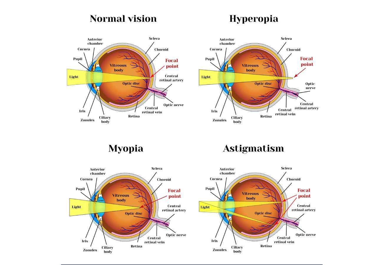 Refracción ocular