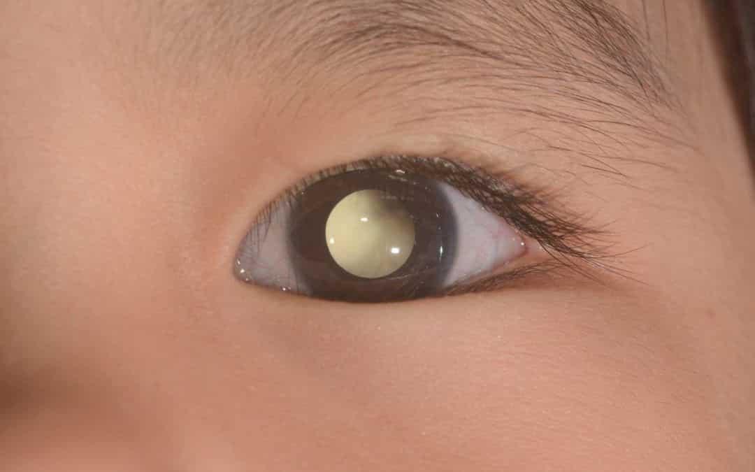 Retinoblastoma: causas, síntomas y tratamiento