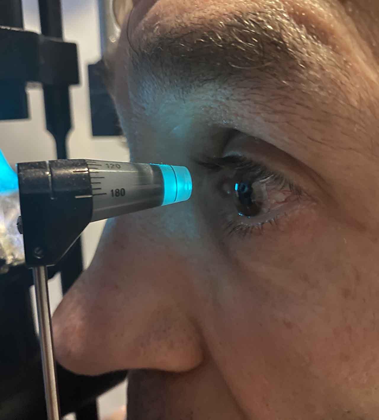revision oftalmologica tonometria