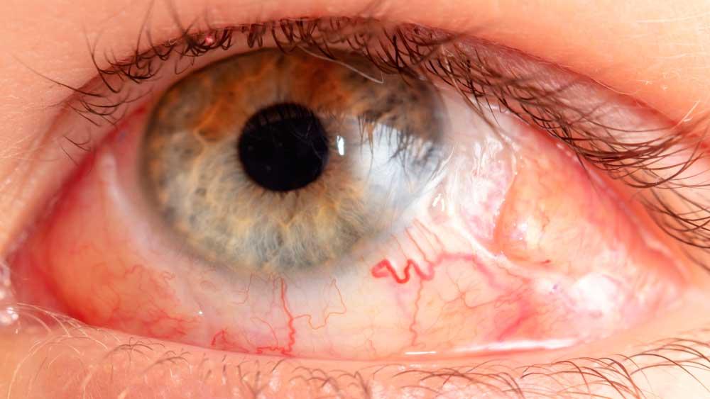 Vitrectomia, qué es, riesgos y postoperatorio