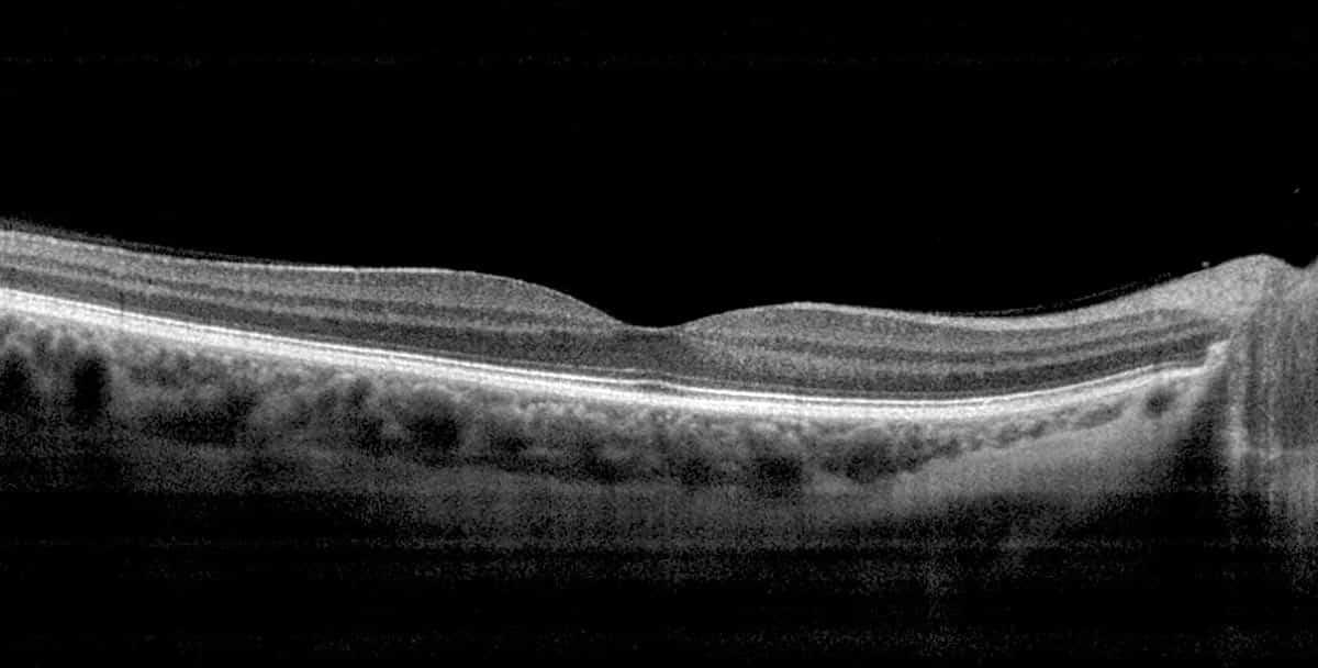 paciente sin edema macular quistico