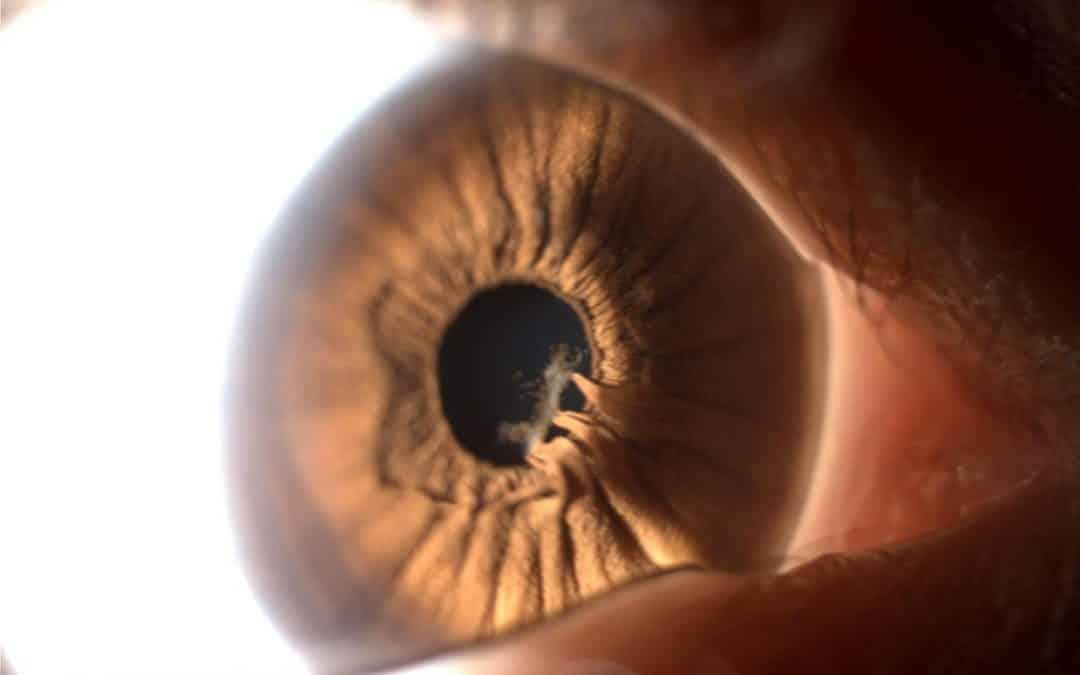 Sinequia ocular: qué es, causas y tratamiento