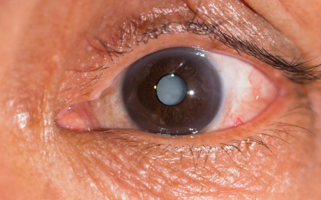 Tipos de cataratas en los ojos ¡Conócelos todos!
