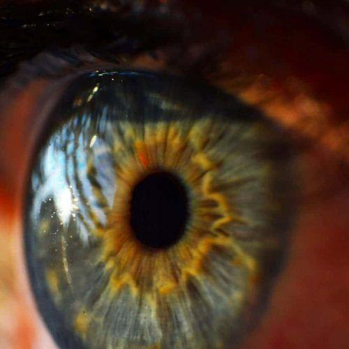 Tipos de cirugía refractiva