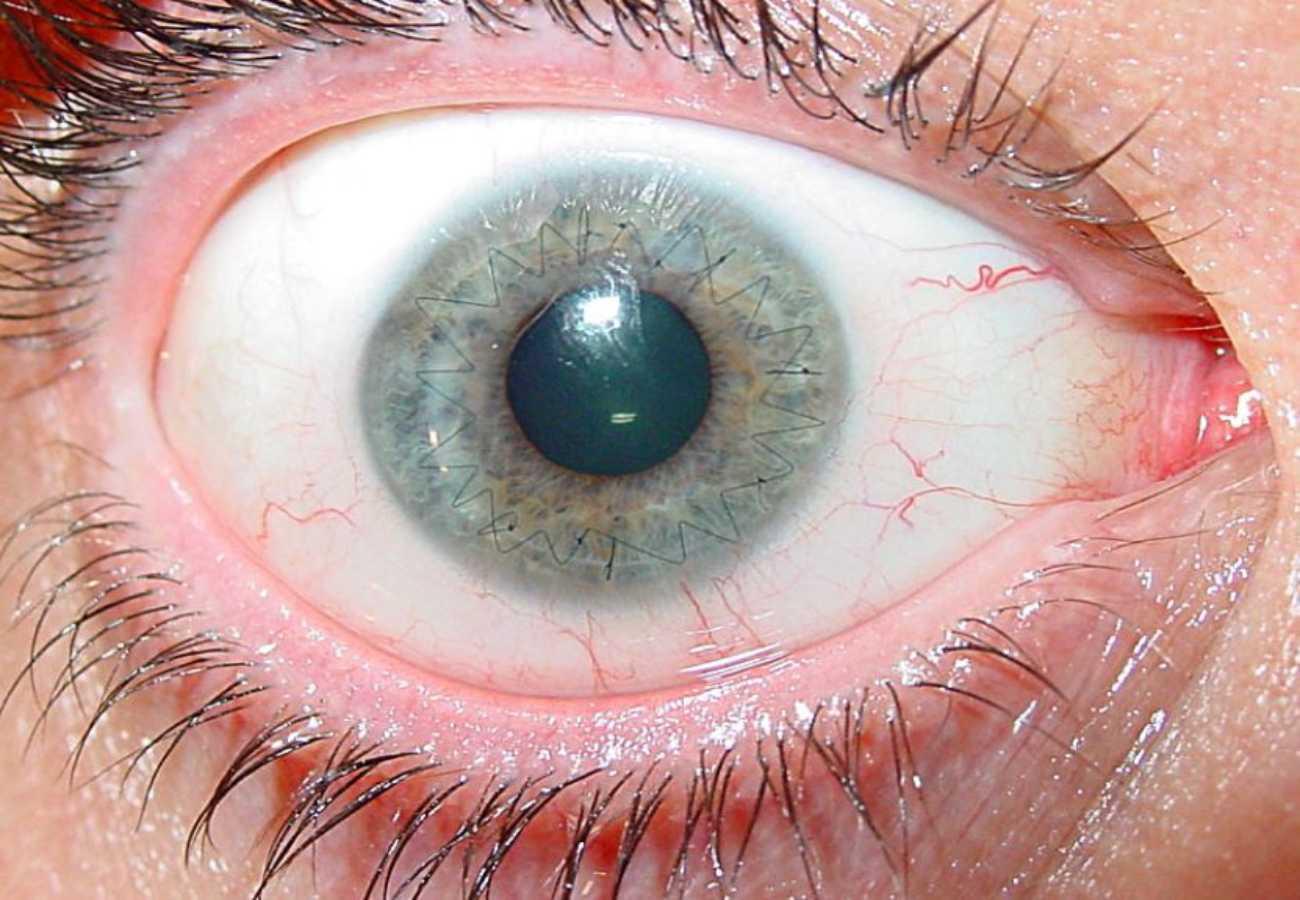 postoperatorio trasplante de cornea