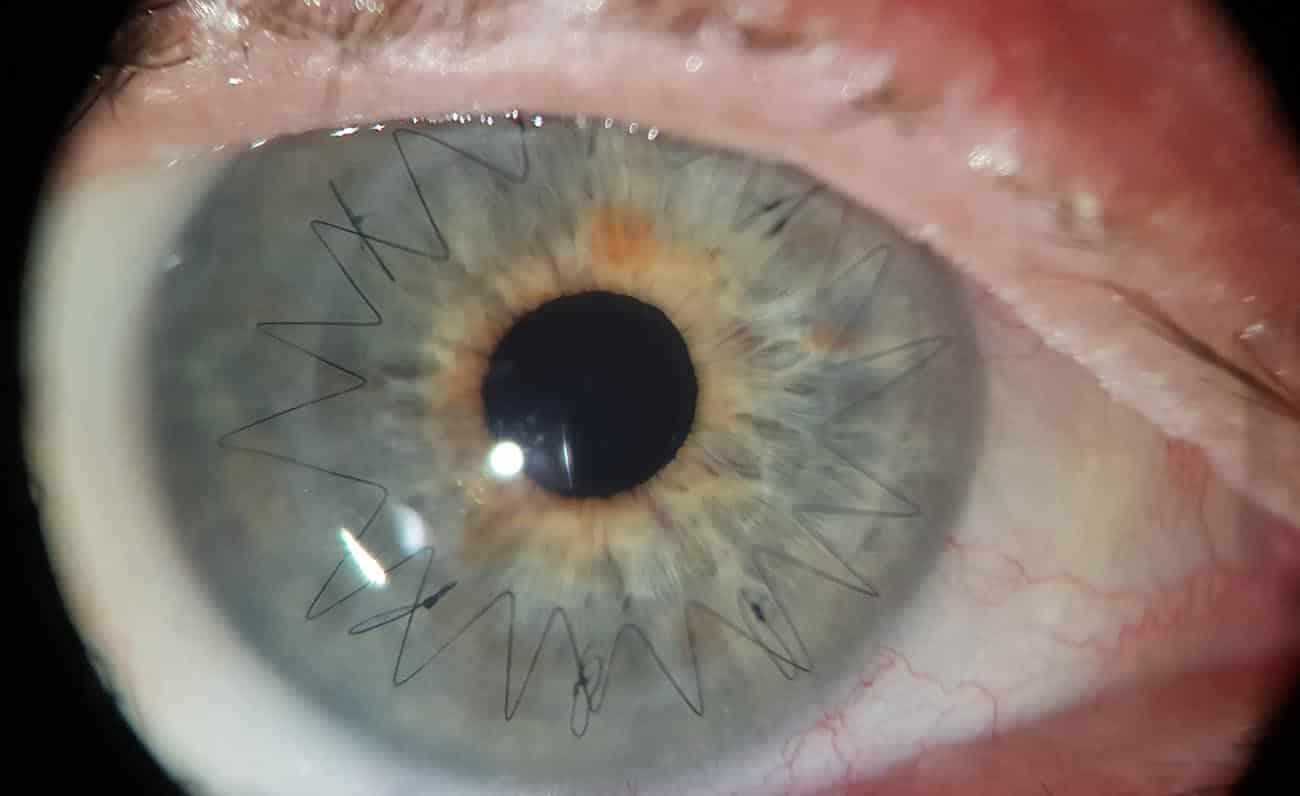 trasplante endotelial de cornea