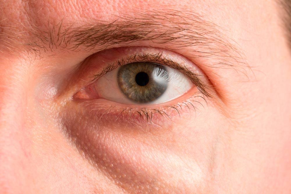 Tratamiento para el edema palpebral