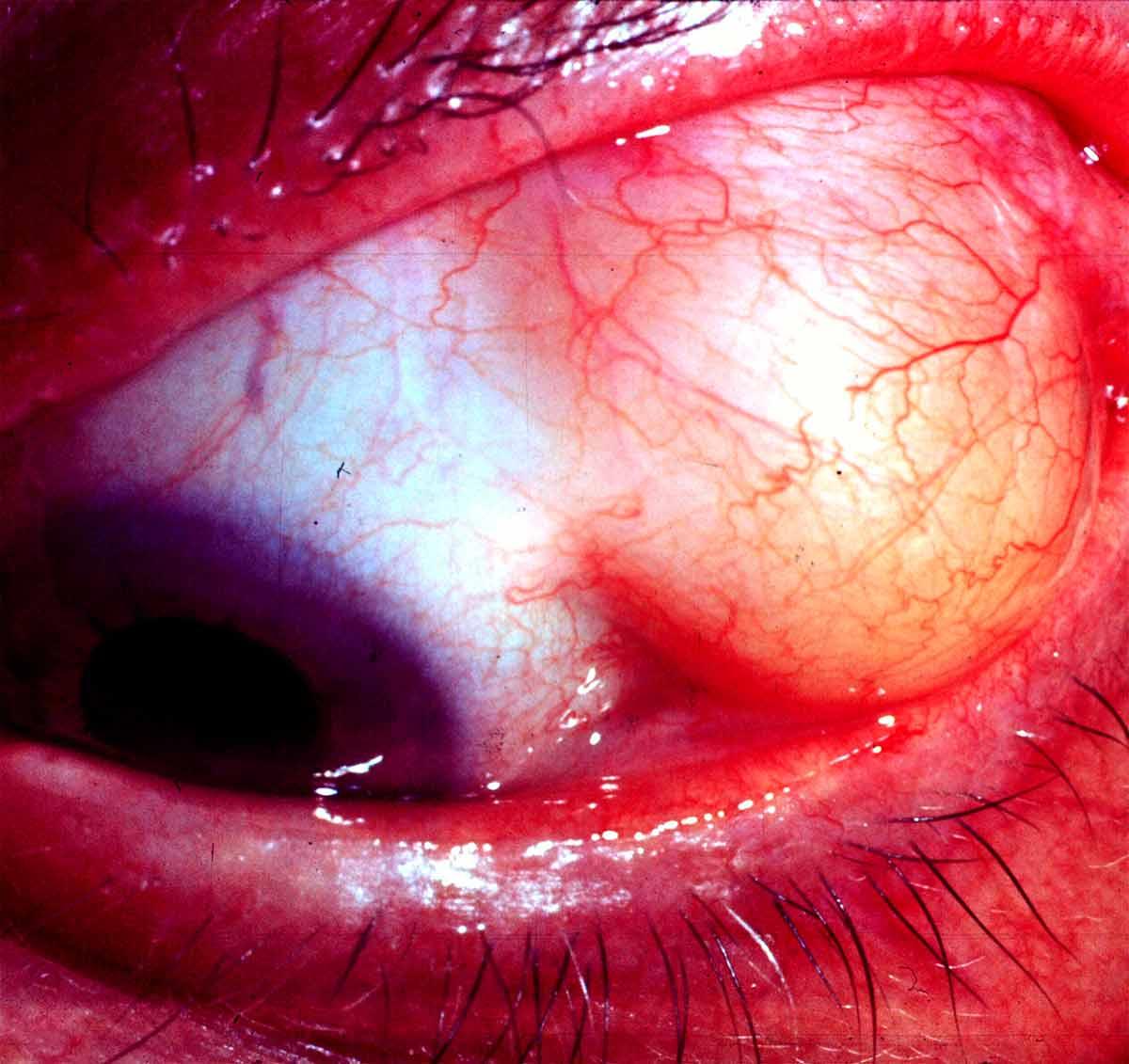 tumor ocular