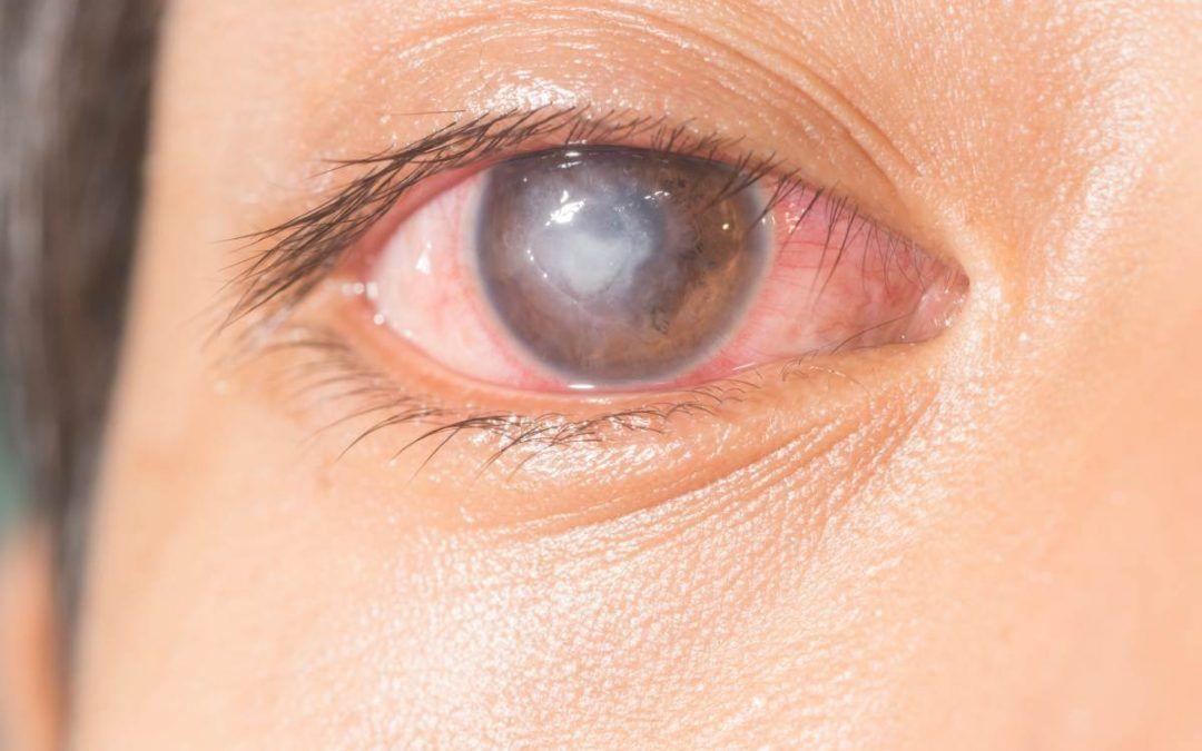 Úlcera corneal, qué es, síntomas y tratamiento