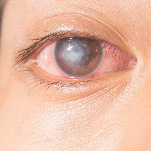 Úlcera da córnea