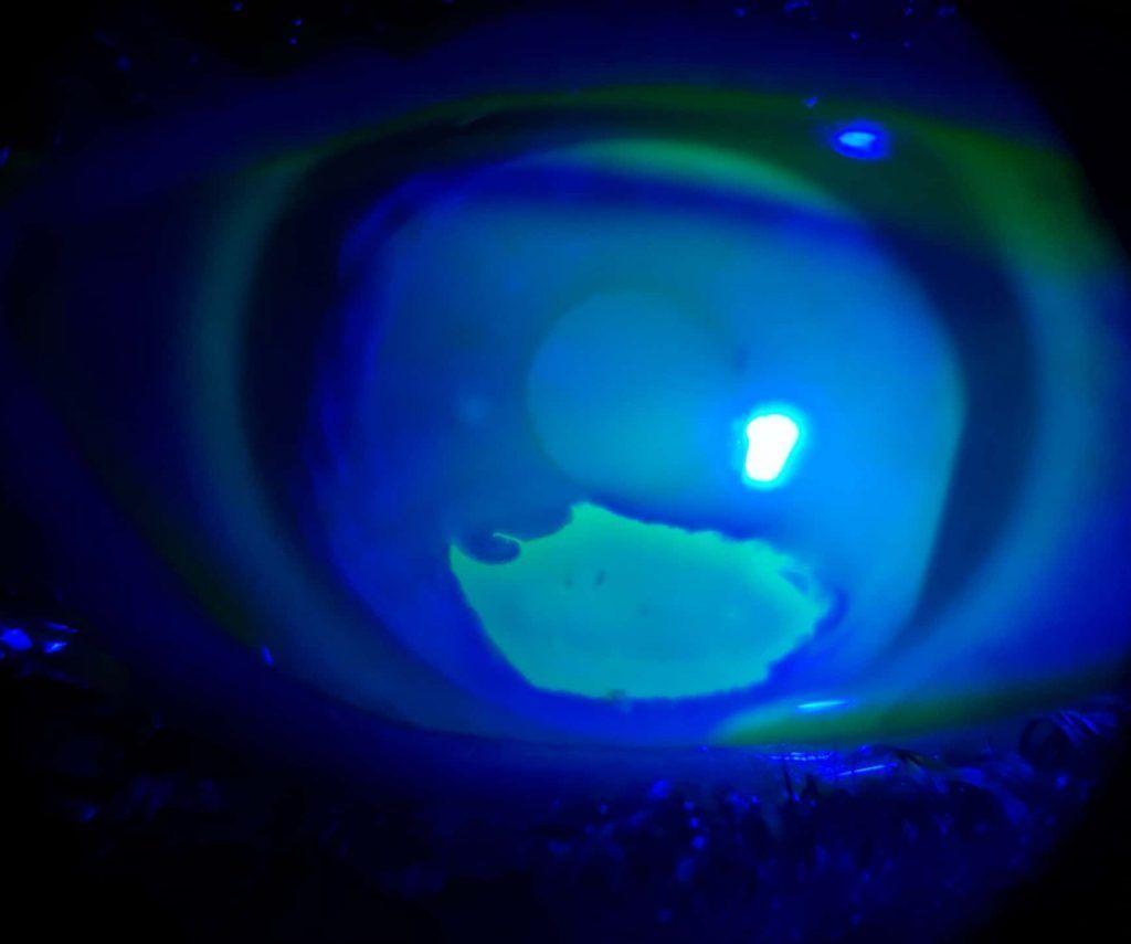 ulcera corneal con fluoresceina