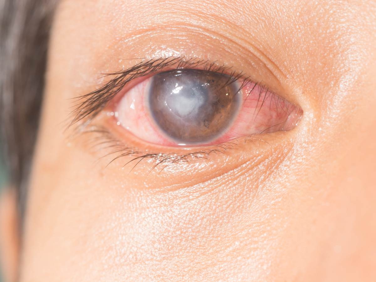 Corneal ulcer, what it is, symptoms and treatment