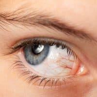 Tengo venas rojas en los ojos, ¿es grave?