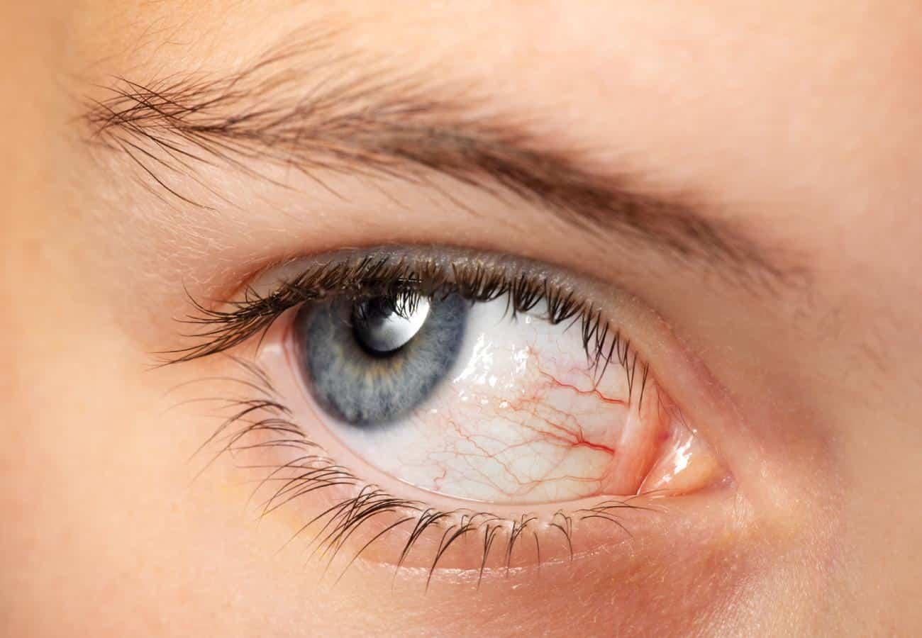 venas rojas en los ojos