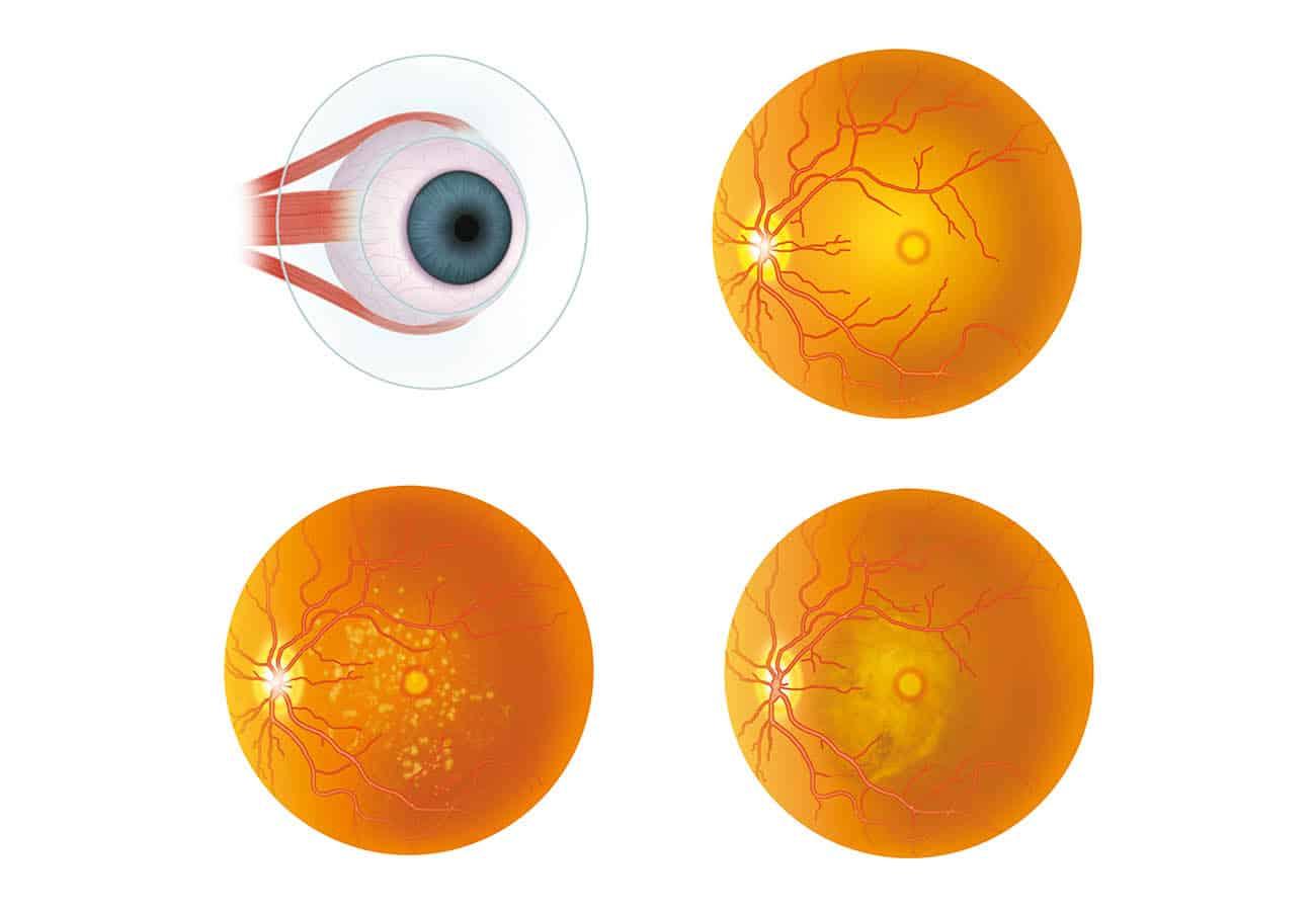 vitrectomia agujero macular